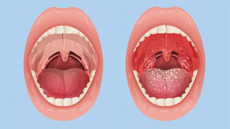 Hiểu được mối nguy hiểm của bệnh viêm amidan mãn tính sẽ giúp người bệnh phòng tránh được một số biến chứng