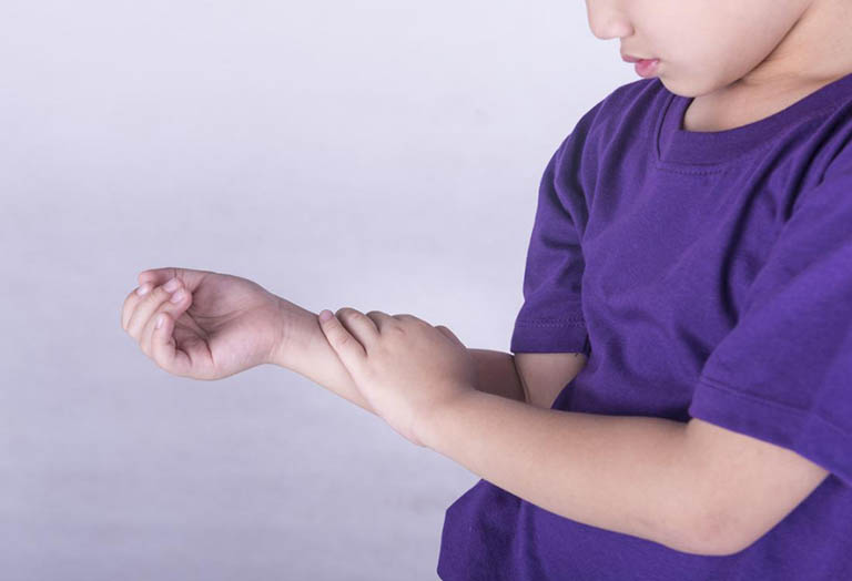 Bệnh viêm khớp dạng thấp thiếu niên thể viêm nhiều khớp