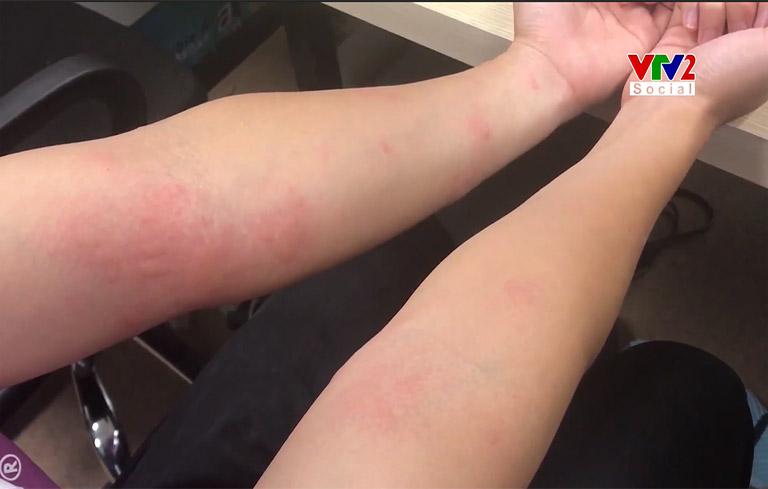 Thực trạng bệnh mề đay mẩn ngứa được VTV2 tổng hợp