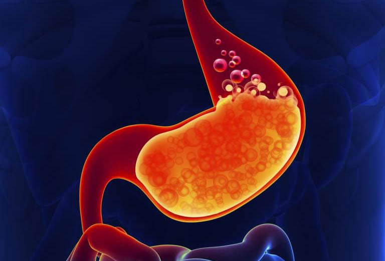 Dư axit dạ dày xảy ra khi độ pH dưới 3.5 và nồng độ axit dạ dày tăng cao, vượt khỏi 0,001 mol/l