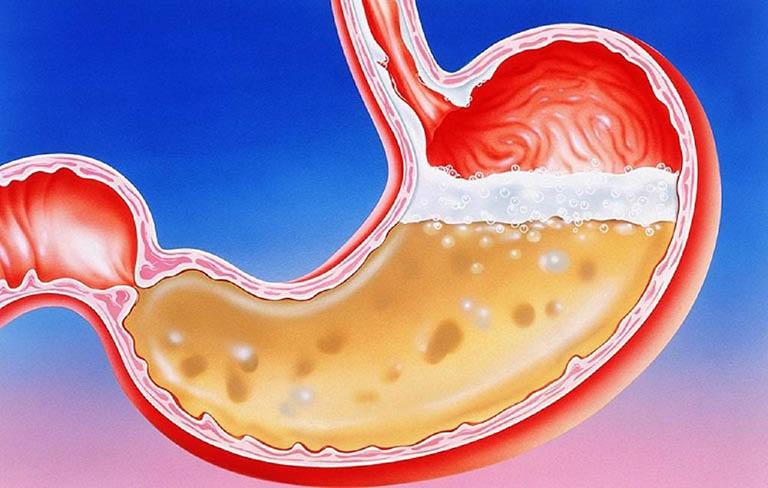 Dư axit dạ dày: Biểu hiện và cách làm giảm hiệu quả