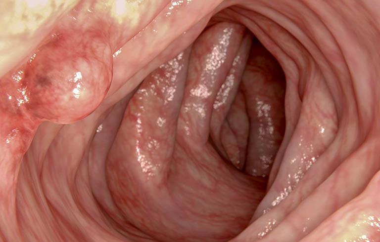 Polyp dạ dày