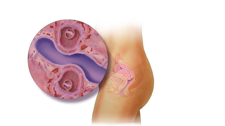 Nội mạc tử cung có ảnh hưởng gì đến khả năng mang thai?