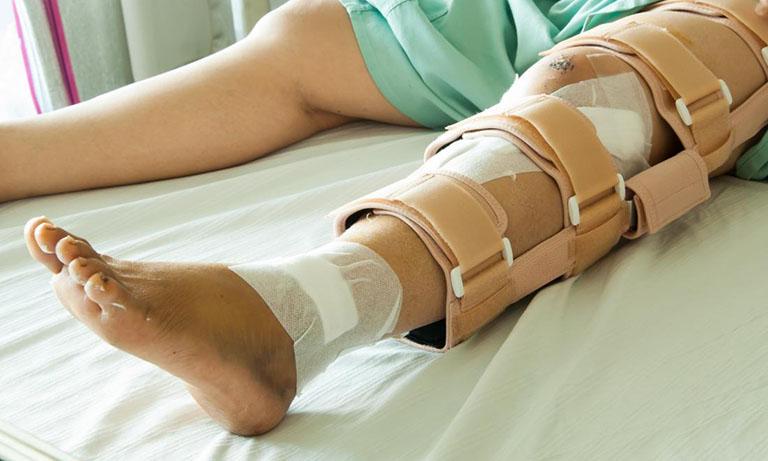 Vật lý trị liệu phục hồi chức năng gãy xương bánh chè