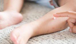 Các thuốc đặc trị ghẻ ngứa ở trẻ em - An toàn, hiệu quả
