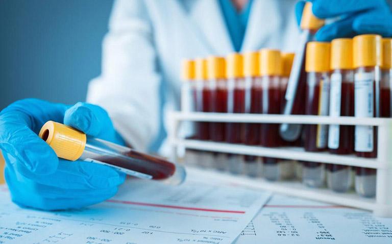 Xét nghiệm máu nổi mề đay và thông tin cần biết