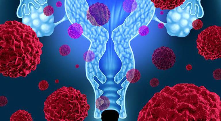 Các giai đoạn ung thư cổ tử cung từ tiền ung thư đến giai đoạn cuối