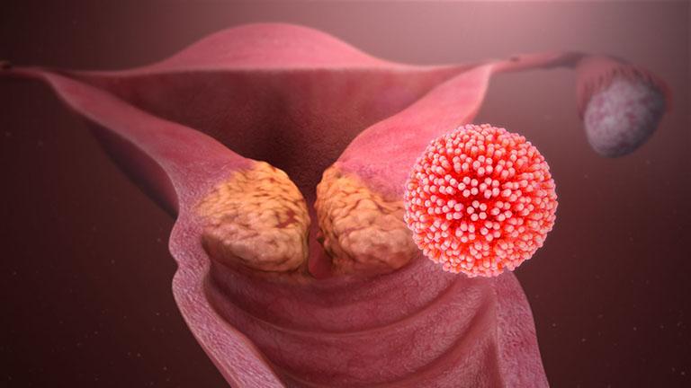 Bệnh ung thư cổ tử cung có lây hay di truyền không?