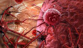 Ung thư cổ tử cung di căn - Thông tin cần biết
