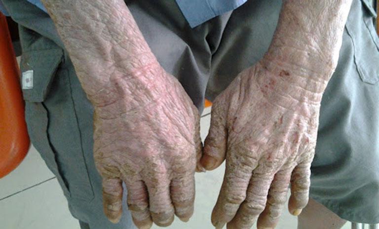 Bệnh chàm khô là gì? Hình ảnh da bị chàm khô