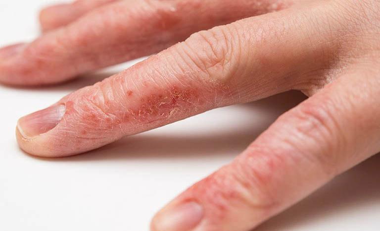 Bệnh chàm khô là gì