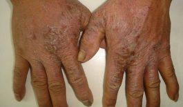 Bệnh chàm khô là gì? Hình ảnh, triệu chứng, cách điều trị