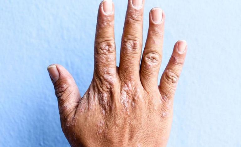 Triệu chứng của bệnh chàm khô