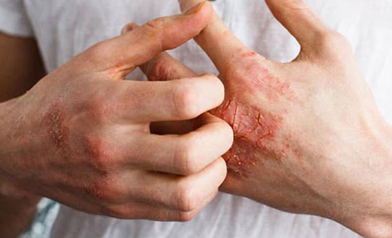 Nguyên nhân gây bệnh chàm khô là gì?