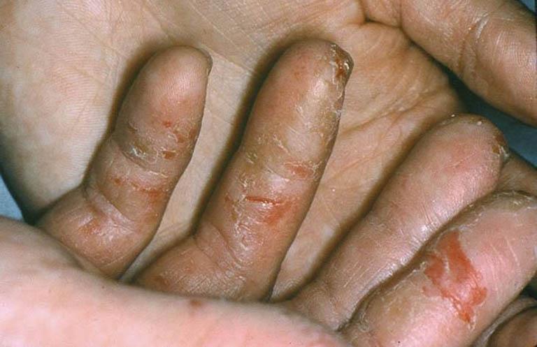 Mức độ nguy hiểm của bệnh chàm khô