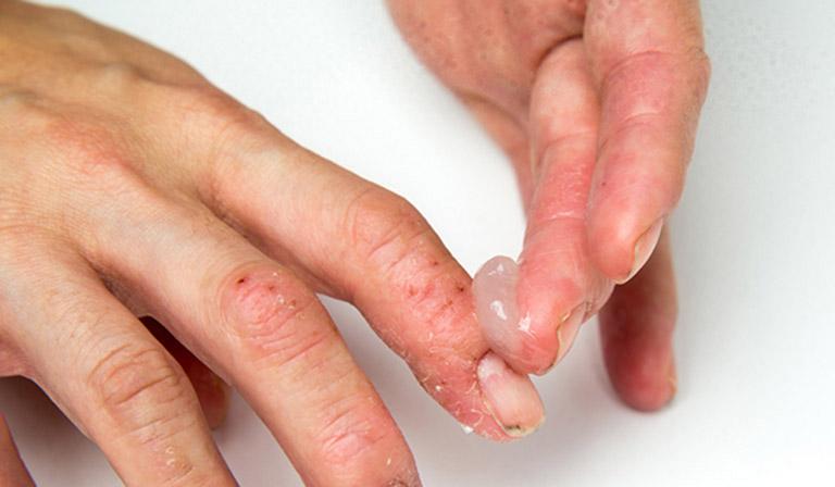 Các cách điều trị bệnh chàm khô