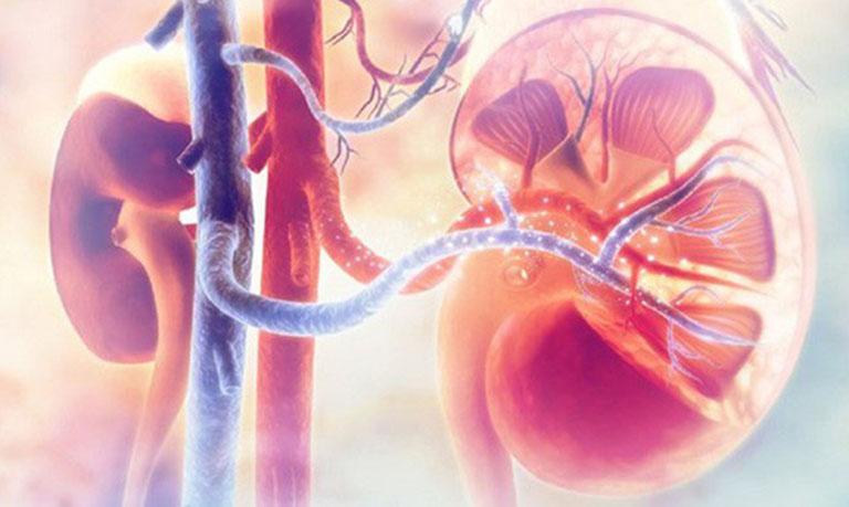 Tổng quan về bệnh viêm cầu thận