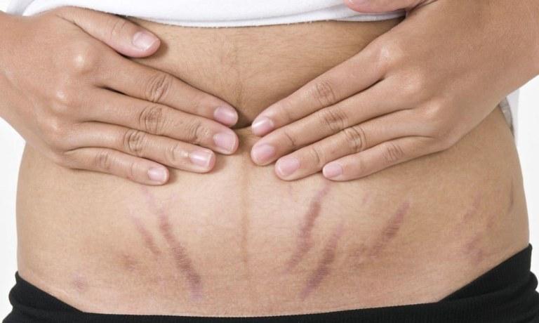7 cách trị rạn da đỏ cực đơn giản mà hiệu quả
