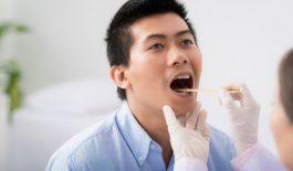 Nhận biết ung thư lưỡi giai đoạn 2