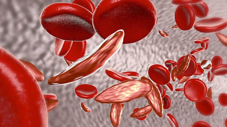 Nguyên nhân gây thiếu máu khi bị bệnh thận mạn