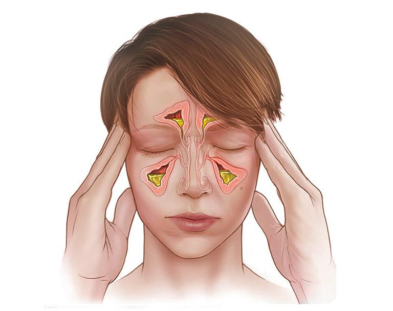Bệnh viêm xoang có thể kích hoạt ở nhiều dạng khác nhau tương ứng với các đặc trưng riêng biệt
