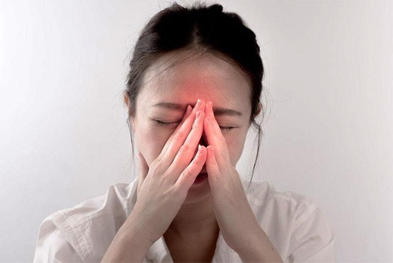 Triệu chứng của viêm xoang mãn tính tăng lên gấp 2 - 3 lần so với viêm xoang cấp tính