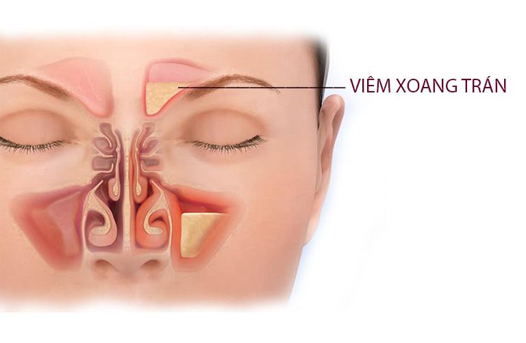 Triệu chứng đặc trưng của viêm xoang trán là tình trạng đau nhức ở vùng xung quanh mắt và trán, đôi khi cơn đau lan đến ổ mắt, dọc cung lông mày và sang cả hai bên thái dương