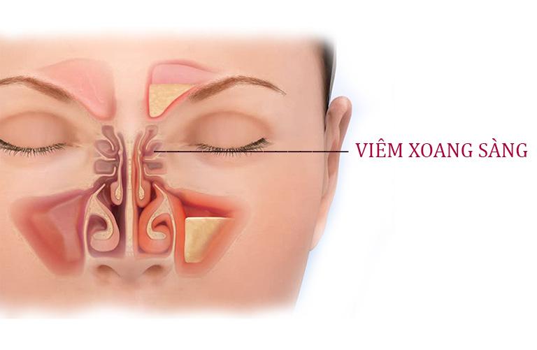 Triệu chứng đặc trưng của viêm xoang sàng là cơn đau nhức âm ỉ vùng mặt và lan rộng sang đỉnh đầu
