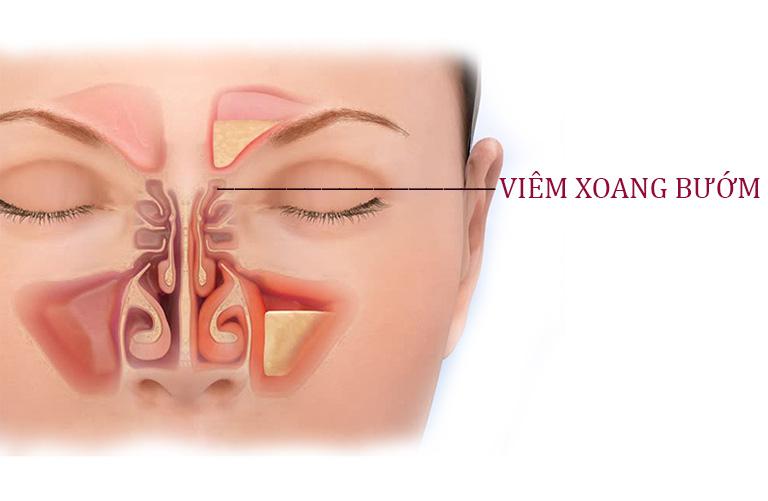 Triệu chứng nhận biết viêm xoang bướm là cơn đau từ vùng hốc mắt lan ra vùng thái dương, kèm theo đó là tình trạng nghẹt mũi, chảy nhiều dịch mũi,...