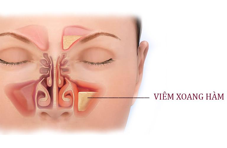 Đau dữ dội ở một hoặc hai bên gò má là triệu chứng đặc trưng của bệnh viêm xoang hàm