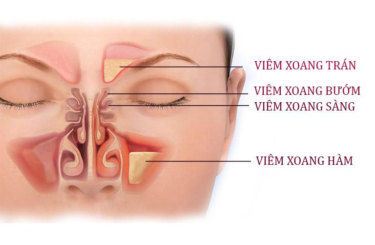 Viêm đa xoang là tình trạng viêm nhiễm được kích hoạt ở 2 hoặc nhiều hơn vị trí hốc xoang