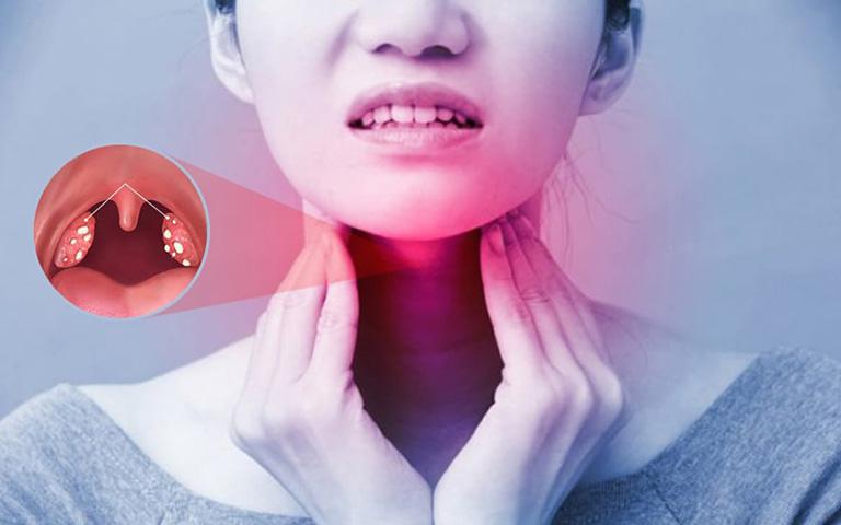 Nguyên nhân gây ngứa cổ họng và ho khan