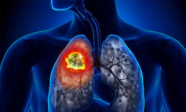 Ho khan tức ngực do ung thư phổi