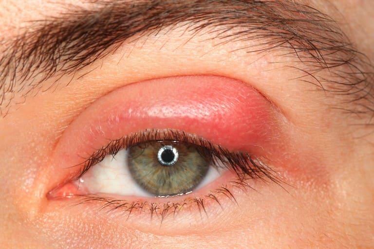 điều trị viêm xoang biến chứng mắt