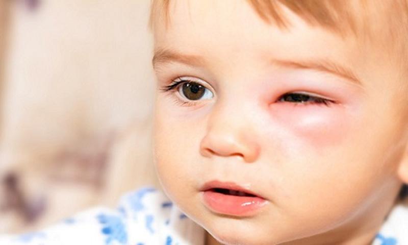 Viêm tấy ổ mắt - biến chứng của viêm xoang