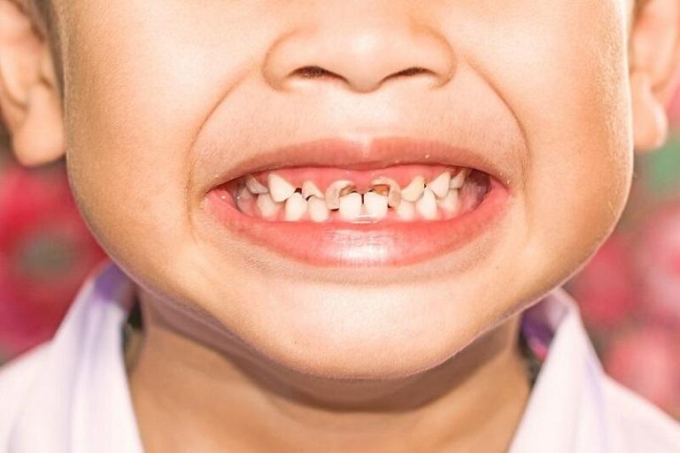 Theo số liệu thống kê cho thấy, ở nước ta tỷ lệ trẻ em bị sâu răng đang chiếm khoảng 79%