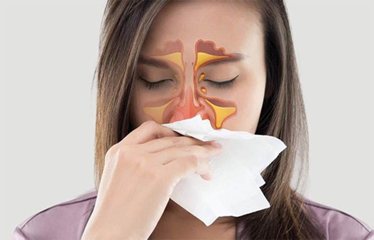 biến chứng nguy hiểm của bệnh viêm xoang