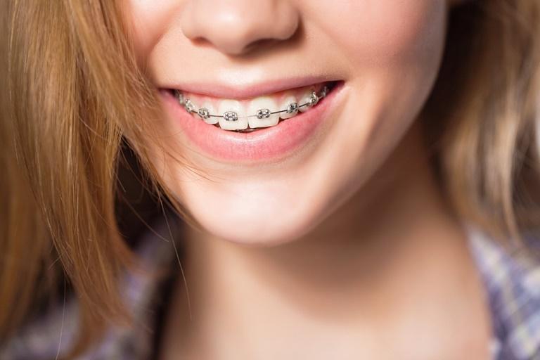 Các loại niềng răng hiện nay