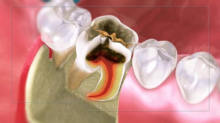 Các mức độ sâu răng tiến triển từ nhẹ đến nặng