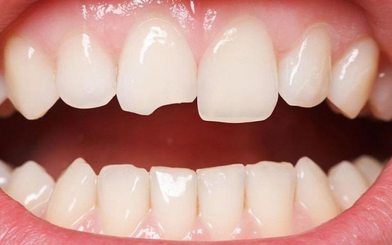 Sứt mẻ răng có thể do một số những chấn thương gây ra như cắn phải đồ quá cứng