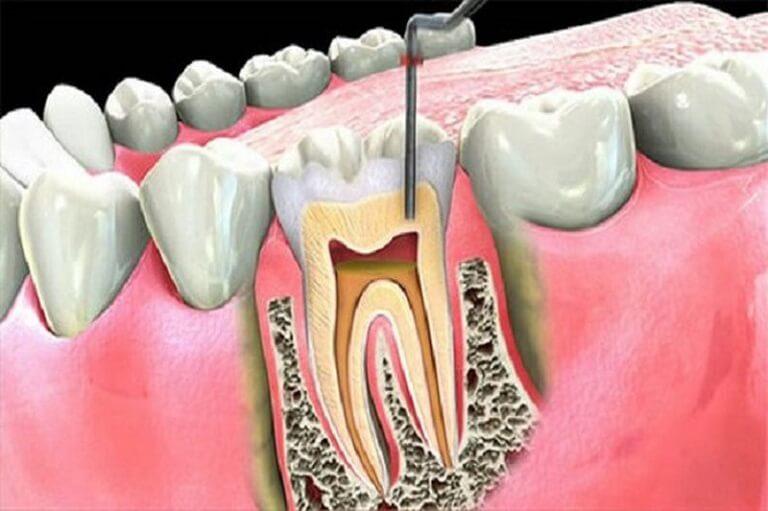 Thực hiện điều trị tủy trong trường hợp sâu răng mức độ nặng