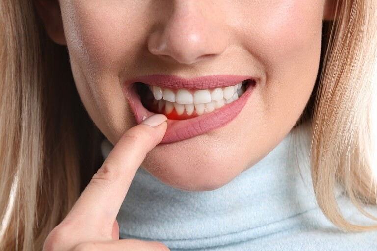 Rất nhiều trường hợp nha chu bị viêm dẫn tới nhiễm trùng máu