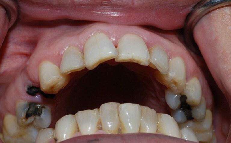 Đau răng cấm nguyên nhân do sâu răng thường chiếm tỉ lệ cao
