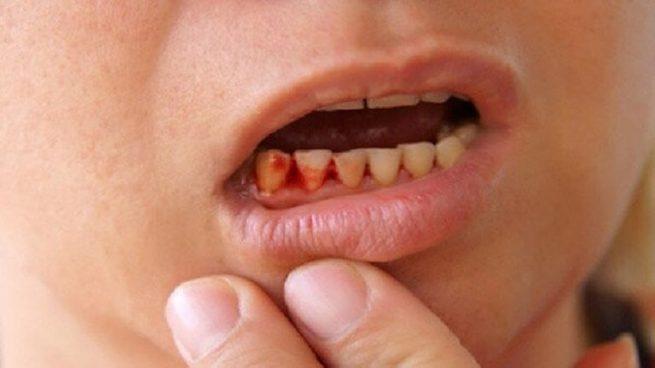 Đau nhức răng nếu không điều trị kip thời có thể gây ra nhiều biến chứng