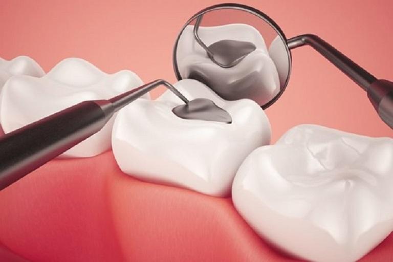 Trám răng là phương pháp giảm đau hiệu quả do sâu răng