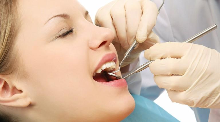 Trường hợp bệnh nặng nên đến nha khoa để được điều trị chuyên sâu