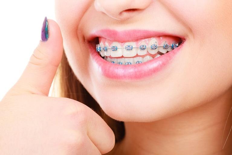 Dây cung niềng răng giúp điều chỉnh các răng xô lệch về đúng vị trí chuẩn trên hàm