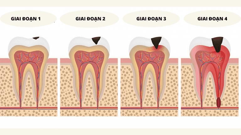 Quá trình sâu răng tiến triển thường diễn ra một cách âm thầm khiến người bệnh dễ chủ quan