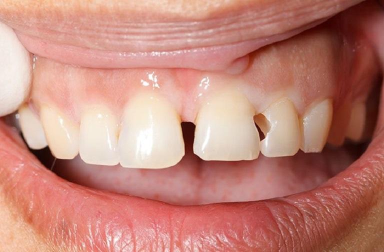 Sâu chân răng cửa khiến việc xé và cắn thức ăn bị cản trở