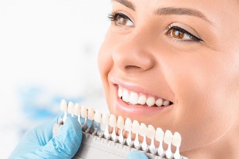 Răng sứ thường có khả năng chịu lực tốt, màu sắc răng tự nhiên